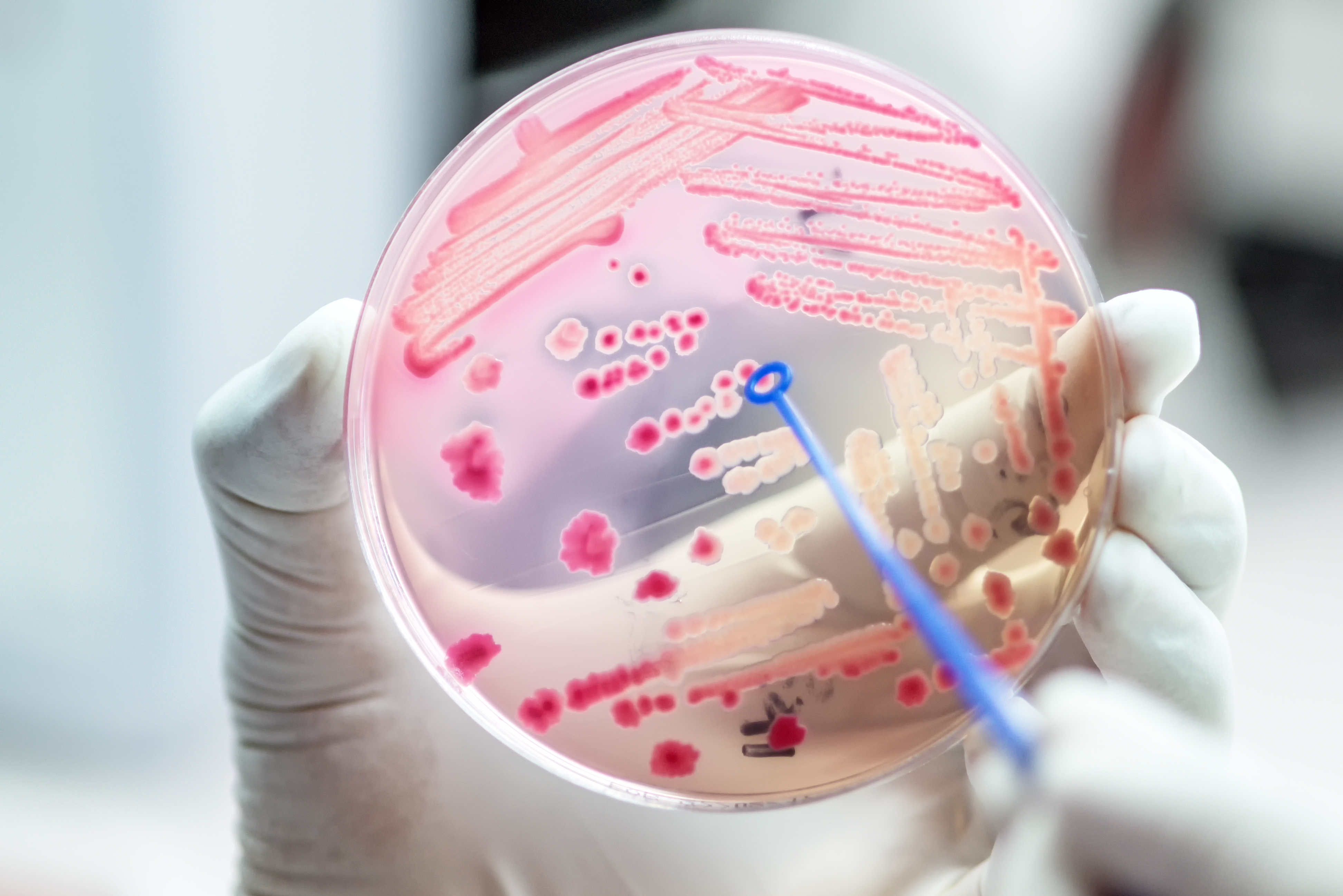 Antibioticele: UZ sau Abuz?